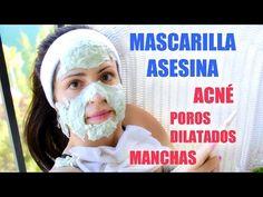 Mascarilla para la Cara para Combatir el Acne y Manchas - YouTube