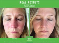 I didnt realize just how red and irritated my face was until I looked at my Before and After pictures. SOOTHE has done wonders for my skin and my self-esteem. I cannot wait to see what my skin looks like a year from now! R F Consultant Rachel Sullivan. COMMENT below with the real results you have seen while using the SOOTHE Regimen. #RFCalmYourself by rodanfields. Message me here or email me at SkinCareRF@hotmail.com for more information. http://ift.tt/1CI4213 #skincare #skin #mom #woman…