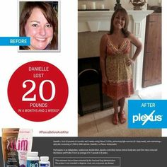 Clinically proven results!! #plexusbeforeandafter  http://shopmyplexus.com/cjpeters