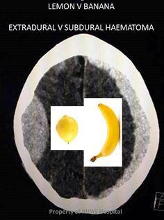 subdural hematoma vs epidural hematoma XRAY - Google Search