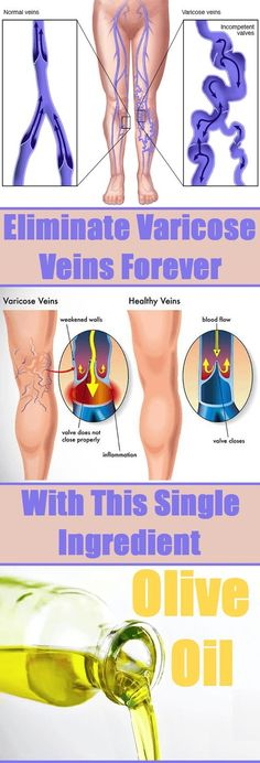 Eliminate Varicose Veins Forever with This Single Ingredient .............