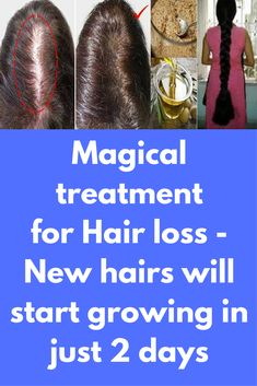 Magical treatment for Hair loss - New hairs will start growing in just 2 days In this article I will tell you about one ancient recipe which has helped many people and they have said that it really works. You will need only 3 ingredients which you probably have in your kitchen. Mix these 3 ingredients and experience amazing results. This is like magic for hair growth. Ingredients: Honey – …
