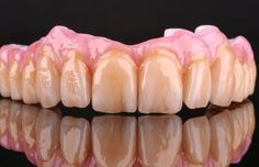 Upper implant arch