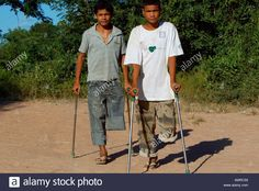 Cambodian teen boy landmine victims.