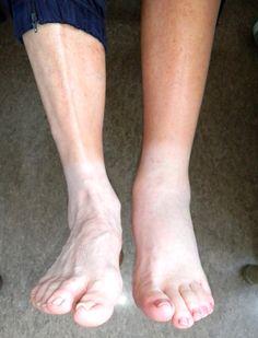 Dr. Geert Vandendriessche, Prothesechirurgie - Knieprothese - Leven met een knieprothese