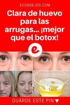 Clara de huevo mascarilla | Clara de huevo para las arrugas... ¡mejor que el botox! | ¡Comprobado! Olvídate de tratamientos caros y dile adiós a las arrugas.