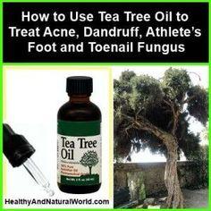 How to Use Tea Tree Oil to Treat Acne Dandruff Athletes Foot and Toenai