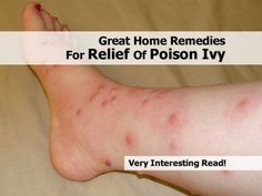 Great Home Remedies For Relief Of Poison Ivy