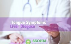 Tongue symptoms liver disease treatment know all about it