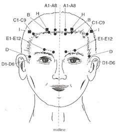 Yamamoto New Scalp Acupuncture - Alchetron, the free social encyclopedia Acupuncture For Anxiety, Acupuncture Benefits, Acupuncture Points, Massage Tips, Massage Therapy, Massage Quotes, Foot Massage, Yamamoto, Massage Images