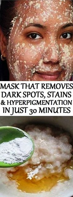 No More Dark Spots, Stains and Hyperpigmentation: ThisMask Removes Them All in Just 30 Minutes.!