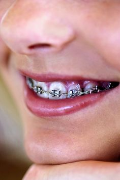 Model fake braces on real ones.