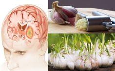 The Journals of Cancer recently published a study which found that a number of chemical agents in garlic produce both reactive oxygen and free radical cells which kill certain types of brain cancer cells. Cancer cells have increased metabolism because they divide rather quickly, which means that in order to continue to maintain that metabolism, …
