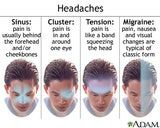 Classifying headaches according to the distribution of pain can help determine the type of headache you are having. Photo © A.D.A.M.