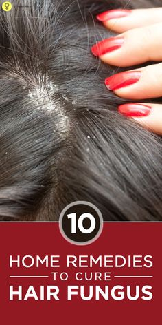 Top 10 #Homeremedies To Cure Hair Fungus