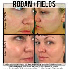 I erased my melasma and changed my life with Rodan + Fields® REVERSE. Contact me to take care of your summer sun damage or pigmentation issues. I'm passionate about helping others do what I have with this!! It's a great time to start!  #rodanandfields #dermatologyatyourbathroomsink #aginginREVERSE #melasma #sunspots #premiumskincare