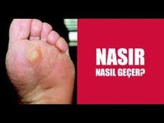 1 NASIRI 1 GÜNDE GEÇİREN EVDE DOĞAL TEDAVİ YÖNTEMİ...!! - YouTube