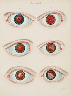 Large_ruete_1854_eyes