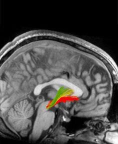 Neuroscience of need - Understanding the addicted mind