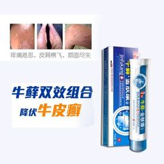 Psoriasis Free - Herb Anti Psoriasis Treatment Eczema Psoriasis Vitiligo Psoriasis Cream Anti Fun - Professors Predicted I Would Die With Psoriasis. But Contrarily to their Prediction, I Cured Psoriasis Easily, Permanently & In Just 3 Days. Severe Psoriasis, Psoriasis Arthritis, Psoriasis Cream, Plaque Psoriasis, Psoriasis Remedies, Eczema Psoriasis, Psoriasis Symptoms, Vitiligo Treatment, Fungi