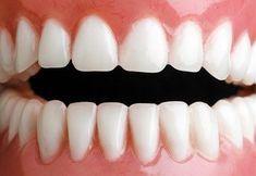 Zbavte se zubního kamene doma - Strana 2 z 2 - Příroda je lék 6767325f5a