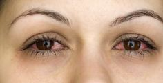 Conjunctivitis is an inflammation or infection of the conjunctiva, the thin transparent membrane that covers the eye. The cause is usually a bacterial or viral infection, an allergic reaction. Eye Infections, Viral Infection, Pink Eyes, Natural Remedies, Health, Cold, Nature, Naturaleza, Health Care