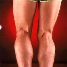Popliteal Cyst Natural Treatment