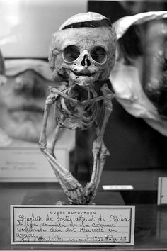 deformed child skeleton