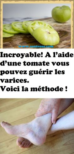 With a tomato you can cure varicose veins. Here is the method Cold Cream, Varicose Veins, Feet Care, Natural Treatments, Baking Soda, Cucumber, Detox, The Cure, Health Fitness
