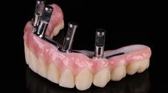 Prettau® bridge cemented onto titanium bar for occlusal screw retention - by Jürgen Feierabend & Georg Walcher
