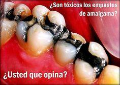 Entrevista: ¿Son tóxicos los empastes de amalgama? - Dr. Francisco Enrile | Odonto-TV