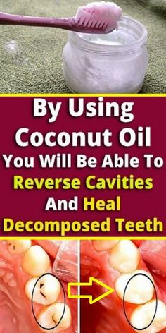 By Using Coconut Oil You Will Be Able To Reverse Cavities And Heal Decomposed Te… - Todo Sobre La Salud Bucal 2020 Teeth Health, Dental Health, Healthy Teeth, Dental Care, Pasta Dental Casera, Reverse Cavities, Homemade Toothpaste, Heal Cavities, Coconut Health Benefits