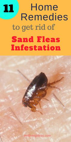 11 Effective Home Remedies To Get Rid Of Sand Fleas Infestation