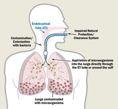 Ventilator-Associated Pneumonia occurs when bacteria bypasses the upper airways, and infects the lungs, causing pneumonia. Prevention: 1. Elevate the HOB 30 degrees. 2. Utilize aseptic technique. 3. Suction the patient PRN. 4. Oral care q4h or PRN. 5. Avoid NS lavage. 6. Bronchial hygiene and chest PT. 7. Daily sedation vacation. 8. Antibiotics per MD orders. 9. Turn the pt to keep the secretions from pooling.