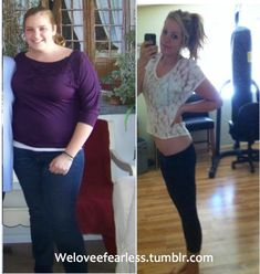 Before and After Weightloss Pics
