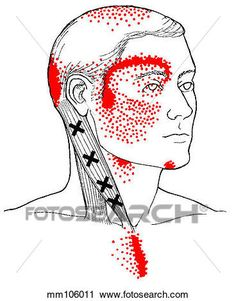 """What You Need To Know About """"Muscle Knots"""" or Trigger Points Muscle Knots, Trigger Point Therapy, Medical Illustration, Graphic Illustration, Trigger Points, Art Icon, Massage Therapy, Community Art, Art Sketchbook"""