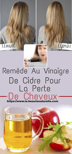 Apple cider vinegar remedy for hair loss Apple Cider Vinegar Remedies, Hair Loss Remedies, Hair Care, Attention, List, Affirmations, Chicago, Make Hair Grow, Wash Hair