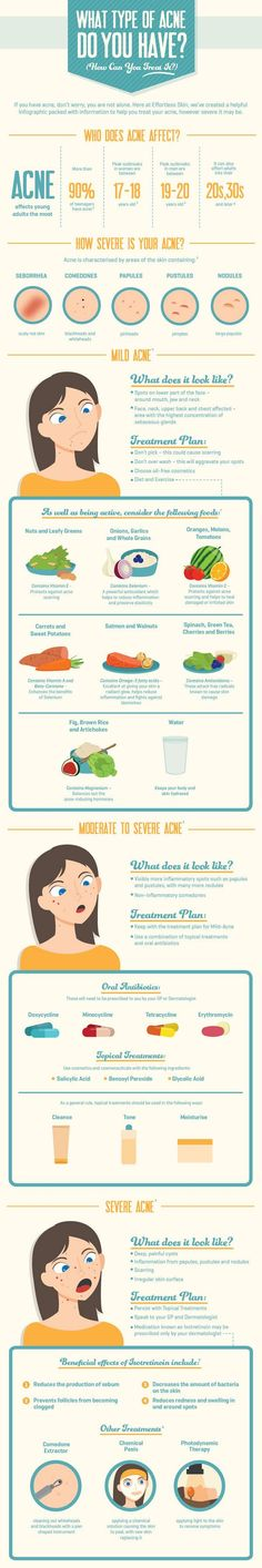 What Type of Acne Do You Have?! http://www.petuniaskincare.com/vitamincseerum #skincare #acne
