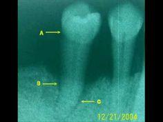 """Comience bien este año 2015 programando desde ya, su limpieza dental en Clínica Dental """"Dr. Francisco Quetglas"""". vea este vídeo:"""