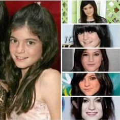 cool Chirurgie esthétique ou pas pour Kylie Jenner ? (photos)