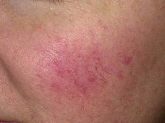 Rosacea Treatments at Mayoral Dermatology in Coral Gables