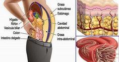 2 ingredientes para vaciar los depósitos de grasa y parásitos de tu cuerpo