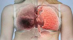 Seus pulmões vão ficar como novos, se você beber este suco incrível!   Cura pela Natureza