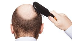 Suffering from #hairloss? Meet our experts to know the causes & find ways to prevent #hair loss @ http://bit.ly/1FArRaZ #Imperialhealth #London