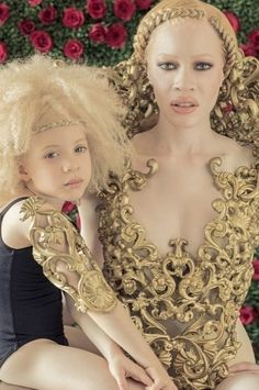 Gourgeous African albinos   Natural hair                                                                                                                                                      More