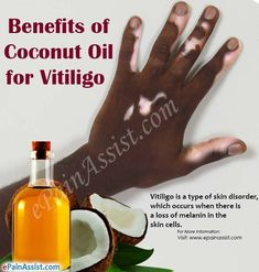 Benefits of Coconut Oil for Vitiligo