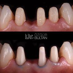 000 retraction cord is placed in the sulcus during tooth preparation to minimise the risk of soft tissue harm. Ready for impression and new IPS e.max bridge... Diş preparasyonu sırasında dişeti oluğunun içine 000 çapında ip yerleştirilmesi; belli bir oranda retraksiyon sağlayarak yumuşak dokulara zarar verme riskini azaltacaktır.  #toothpreparation #retraction #emax #bridge #prosthodontist #dentist #dentalphotography #ozgurbultan