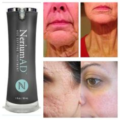 Real Results 101:  Try NeriumAD for 90 Days and see the difference it makes in your skin.   www.daniellekay.nerium.com