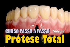 protese-total