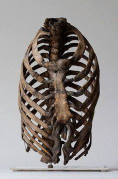 Corset damage to a ribcage.  19th century London.  Hunterian Collection, Royal College of Surgeons, London via The Chirurgeon's Apprentice.